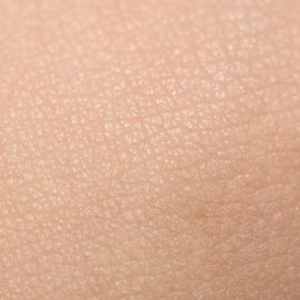 Skin pH: How technology can help prevent skin disease
