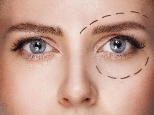 eye area