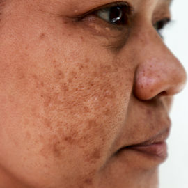Why natural action on genetic factors is key to combatting melasma
