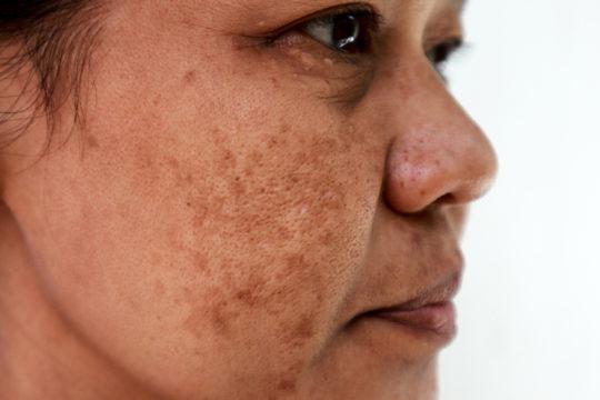 Hyperpigmentation - melasma